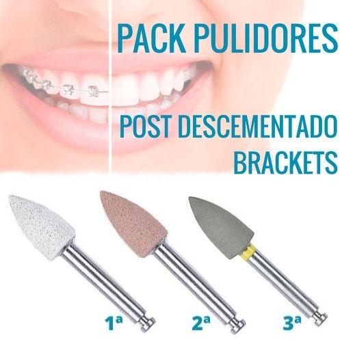PACK PULIDORES POST DESCEMENTADO BRACKETS