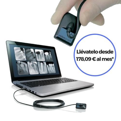 Captador Digital Radiovisiografía Videograph - Solución Diagnóstico Intraoral
